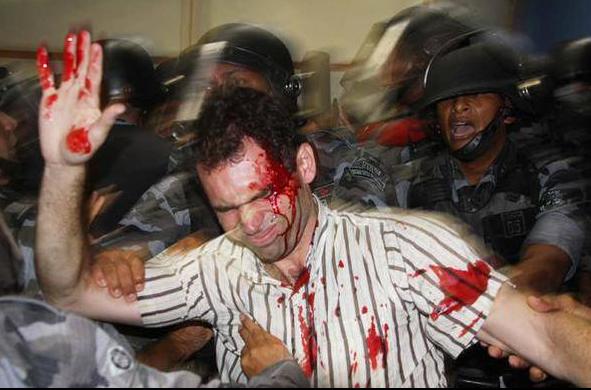 professor ensanguentado cercado de policiais militares em protesto em Curitiba, 2015